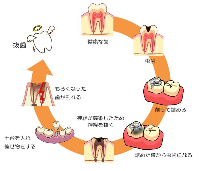 渋谷 松濤 歯科 松涛デンタルクリニック 虫歯治療のサイクル